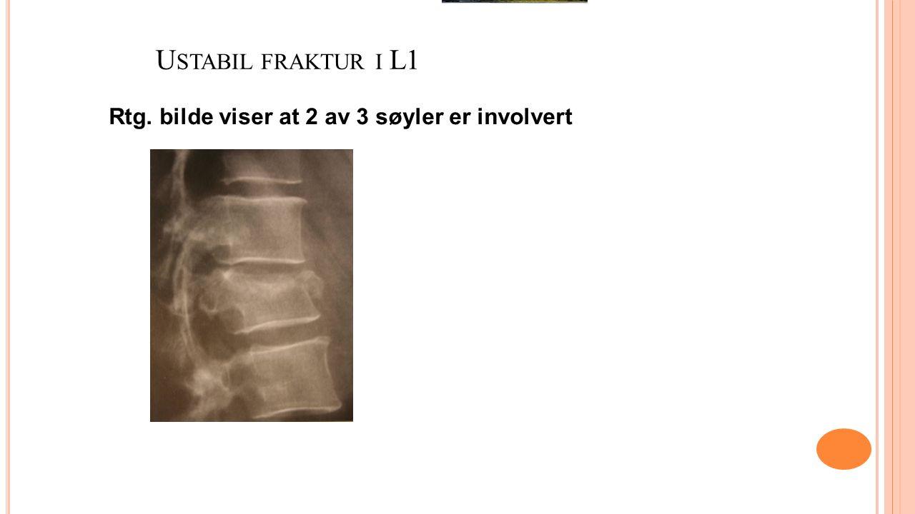 U STABIL FRAKTUR I L1 Rtg. bilde viser at 2 av 3 søyler er involvert