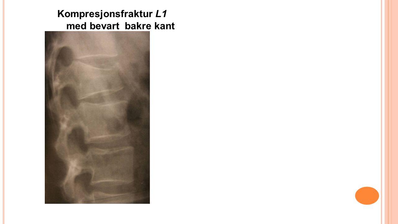 Kompresjonsfraktur L1 med bevart bakre kant