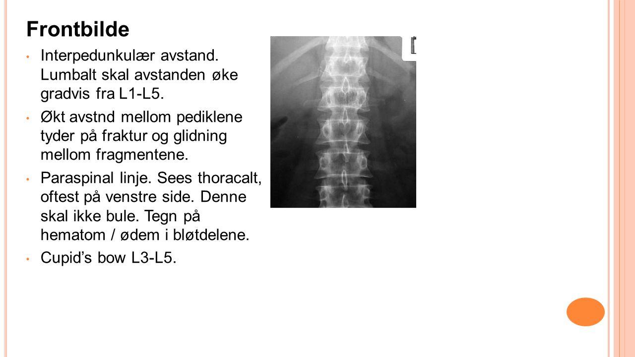 Frontbilde Interpedunkulær avstand. Lumbalt skal avstanden øke gradvis fra L1-L5.