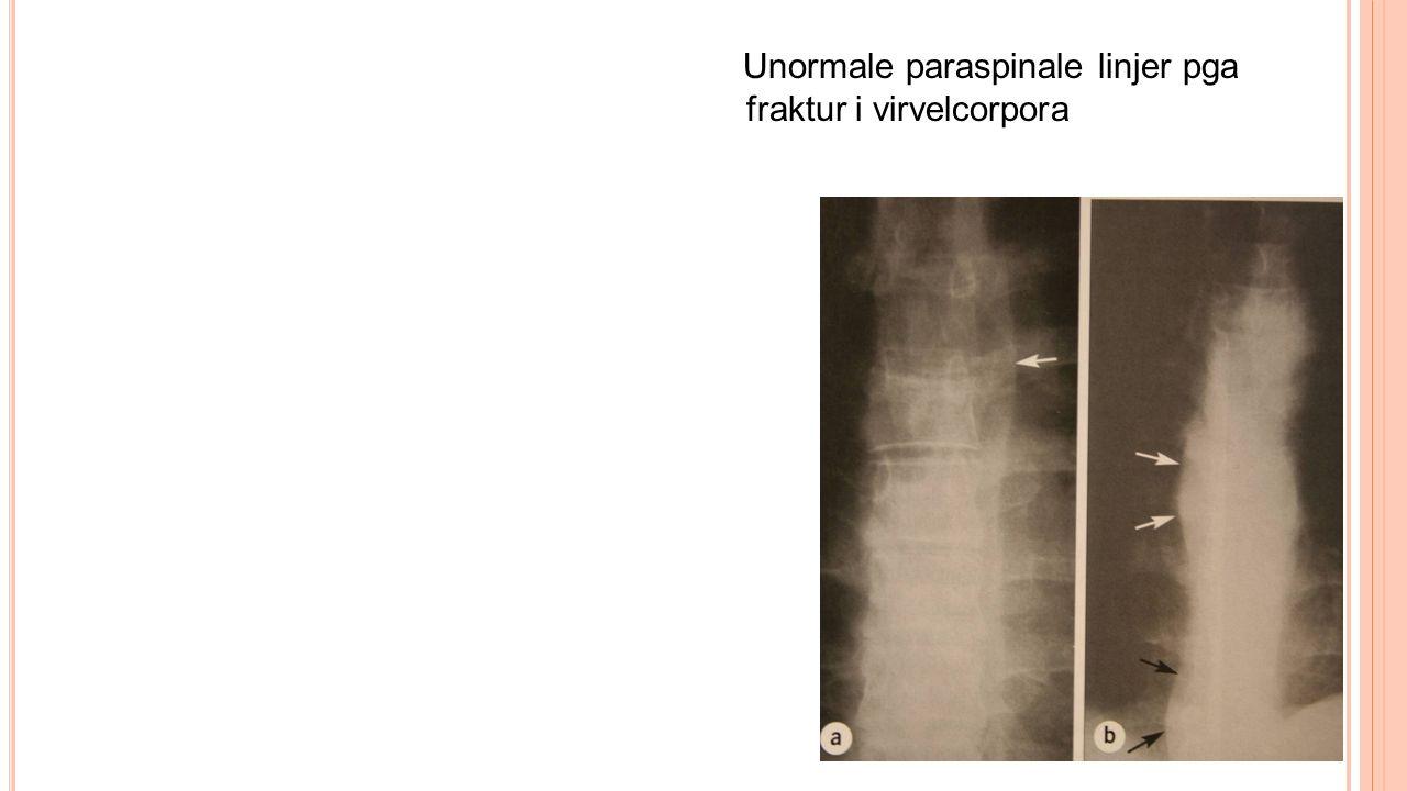 Unormale paraspinale linjer pga fraktur i virvelcorpora
