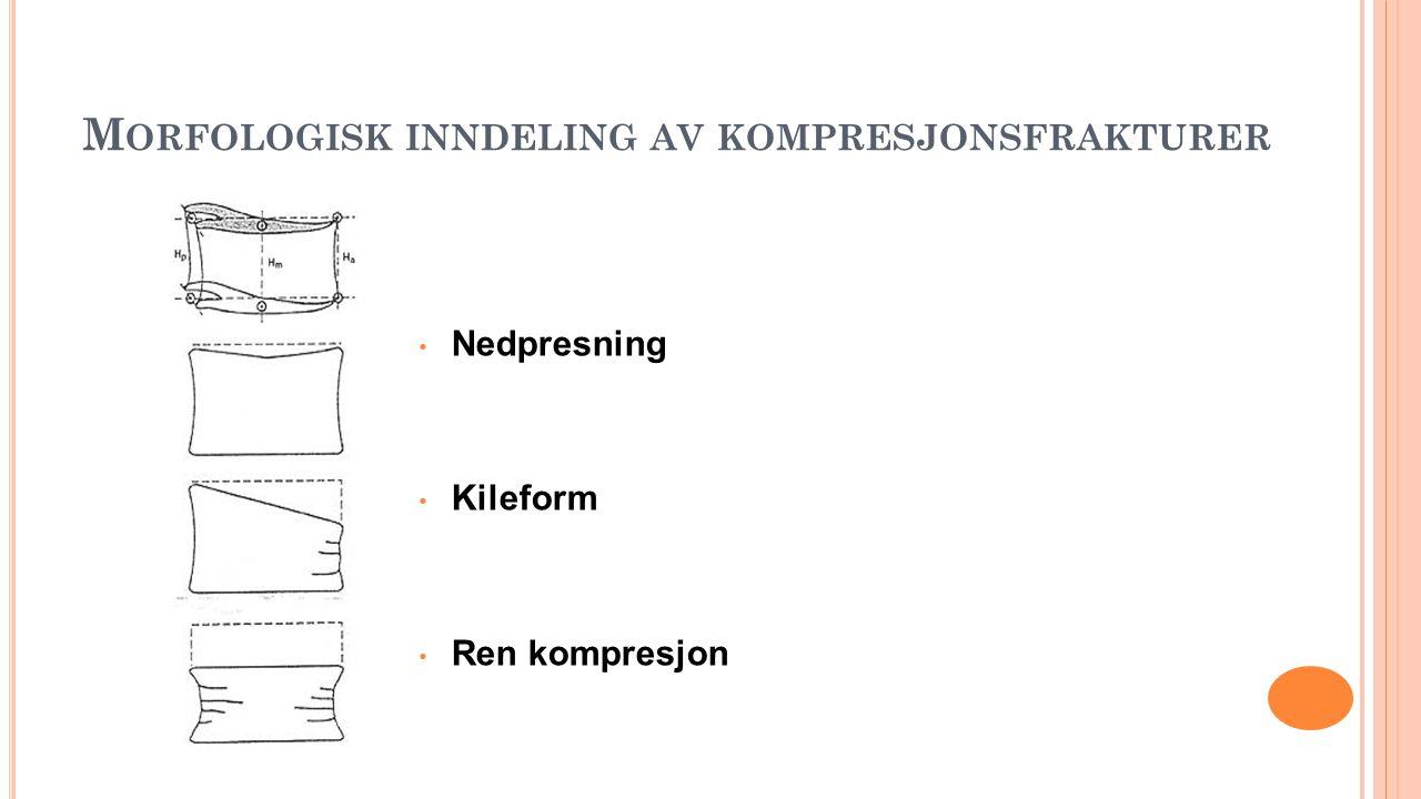 M ORFOLOGISK INNDELING AV KOMPRESJONSFRAKTURER Nedpresning Kileform Ren kompresjon