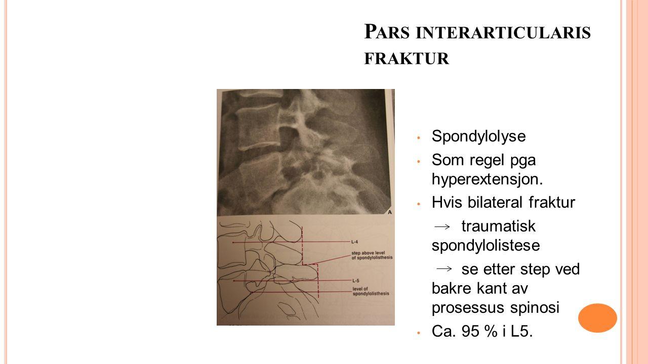 P ARS INTERARTICULARIS FRAKTUR Spondylolyse Som regel pga hyperextensjon. Hvis bilateral fraktur traumatisk spondylolistese se etter step ved bakre ka