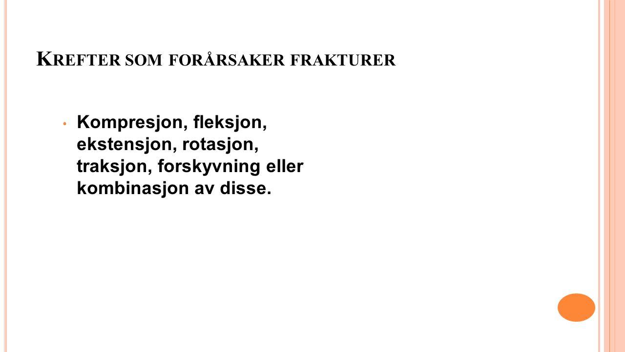 K REFTER SOM FORÅRSAKER FRAKTURER Kompresjon, fleksjon, ekstensjon, rotasjon, traksjon, forskyvning eller kombinasjon av disse.