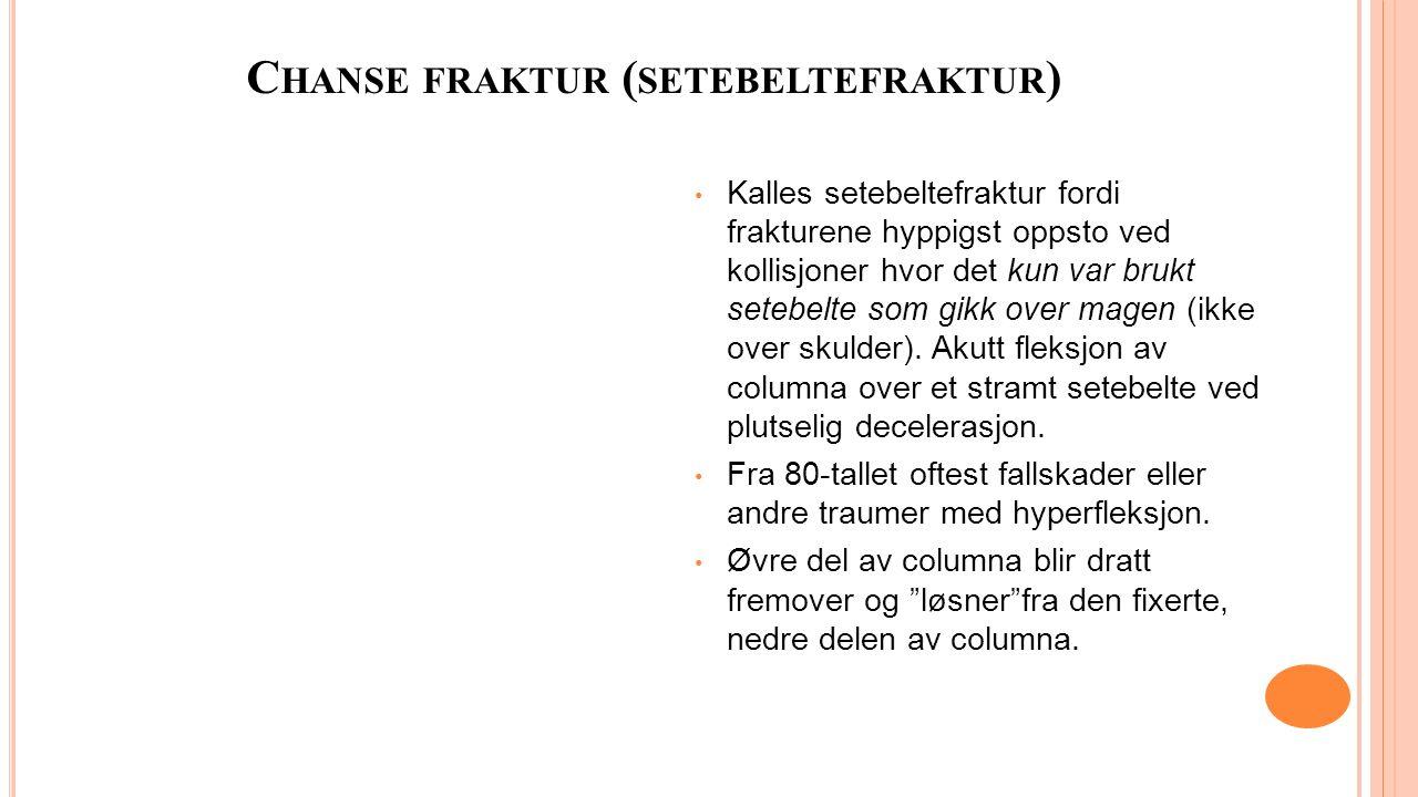C HANSE FRAKTUR ( SETEBELTEFRAKTUR ) Kalles setebeltefraktur fordi frakturene hyppigst oppsto ved kollisjoner hvor det kun var brukt setebelte som gikk over magen (ikke over skulder).