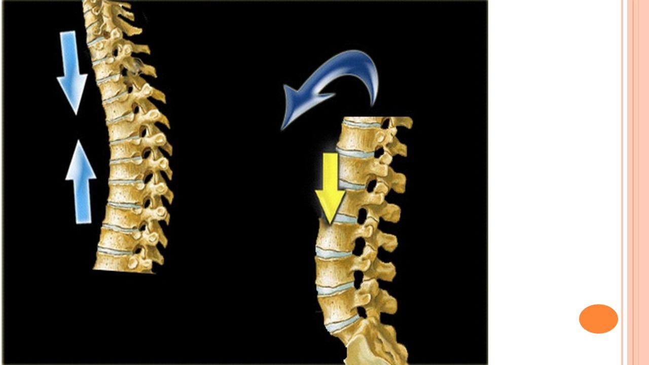 P ROCESSUS SPINOSI - AVRIVNING Som regel pga: 1) Direkte traume eller 2) Kraftig fleksjon og rotasjon.