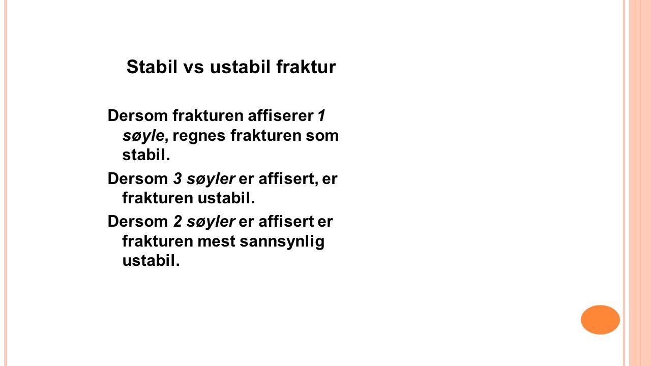 Stabil vs ustabil fraktur Dersom frakturen affiserer 1 søyle, regnes frakturen som stabil.