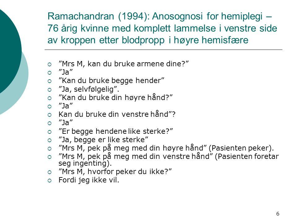 6 Ramachandran (1994): Anosognosi for hemiplegi – 76 årig kvinne med komplett lammelse i venstre side av kroppen etter blodpropp i høyre hemisfære  Mrs M, kan du bruke armene dine  Ja  Kan du bruke begge hender  Ja, selvfølgelig .