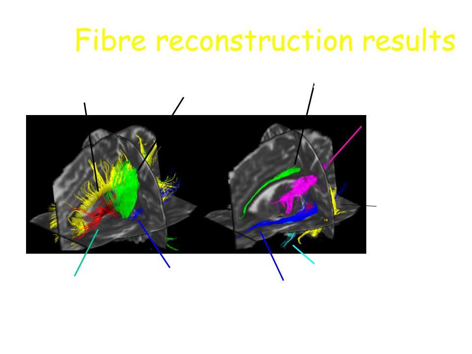 corpus callosumcorticospinal tract optic radiation anterior thalamic radiation cingulum inferior occipitofrontal fasciculus uncinate fasciculus inferi