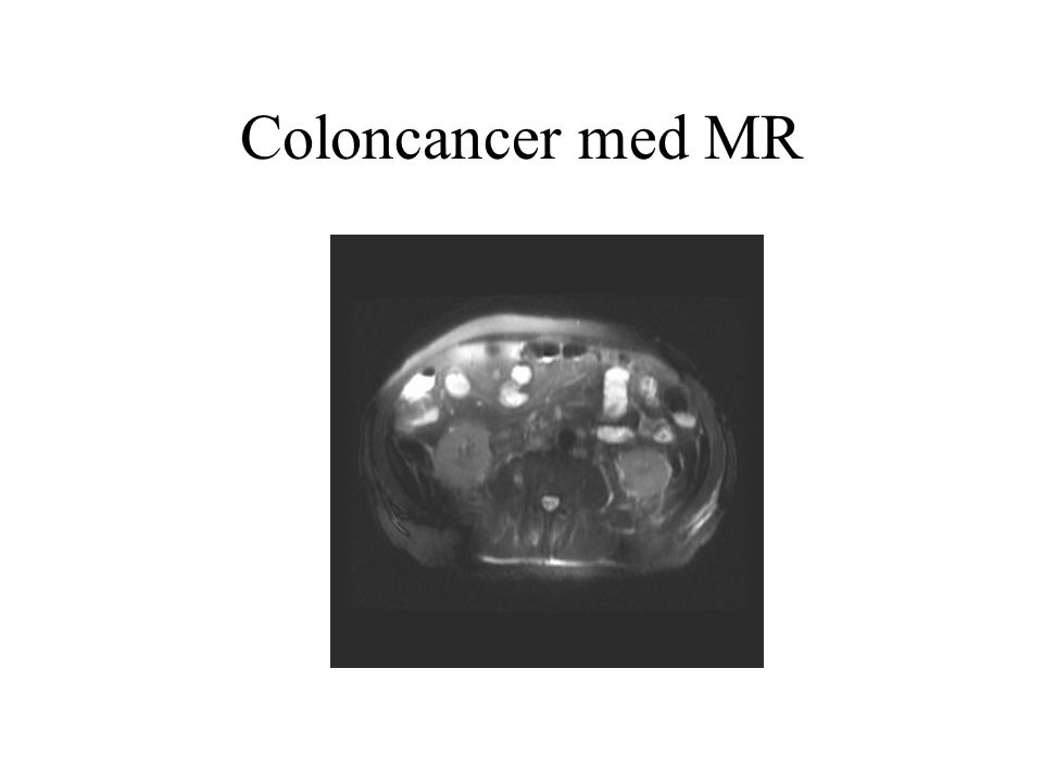 Coloncancer med MR