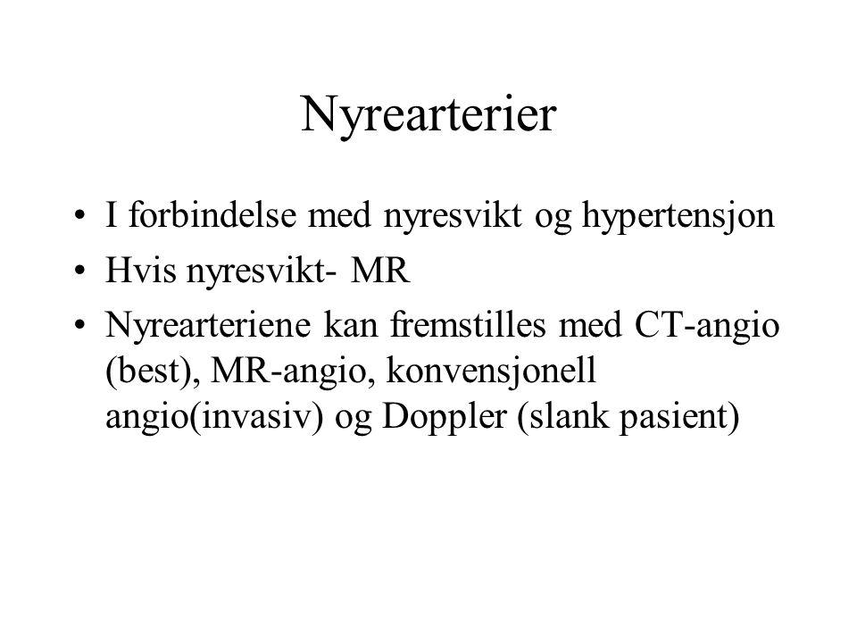 Nyrearterier I forbindelse med nyresvikt og hypertensjon Hvis nyresvikt- MR Nyrearteriene kan fremstilles med CT-angio (best), MR-angio, konvensjonell angio(invasiv) og Doppler (slank pasient)