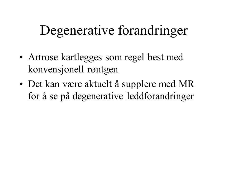 Degenerative forandringer Artrose kartlegges som regel best med konvensjonell røntgen Det kan være aktuelt å supplere med MR for å se på degenerative leddforandringer