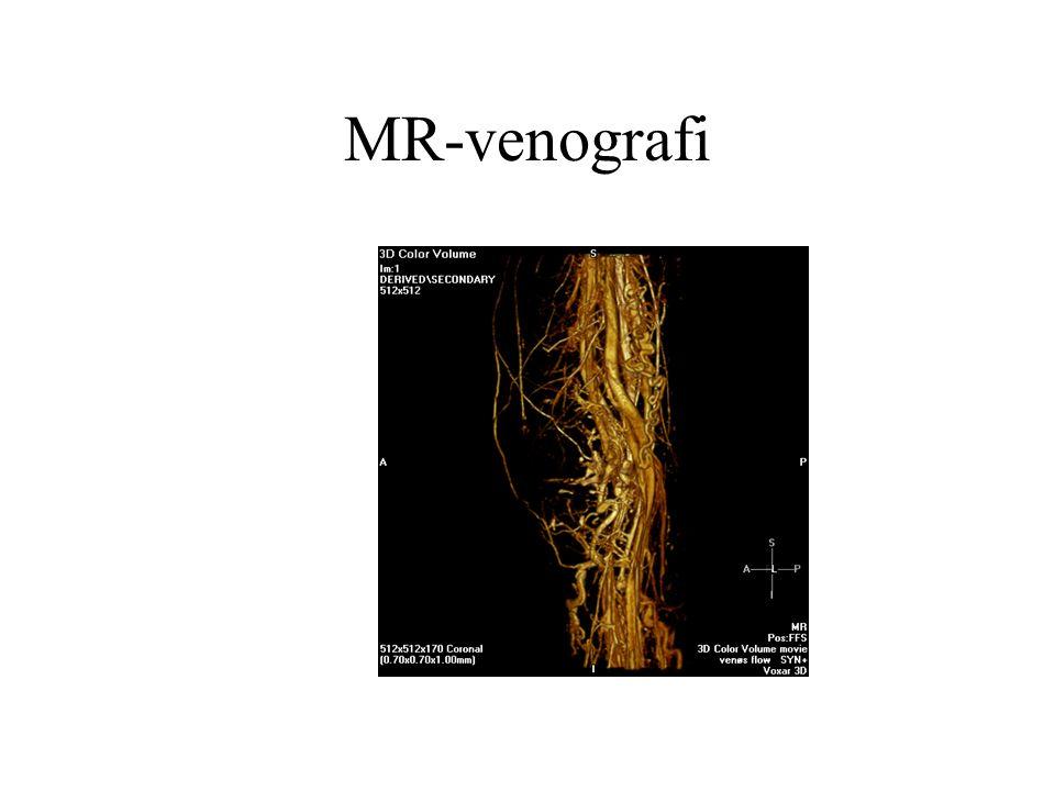 Nyrefunksjon Urografi gir en grov indikasjon, men er avhengig av kontrast MR gir en god vurdering og MR-kontrasten er ikke nefrotoxisk Nucleærmedisin beste metode
