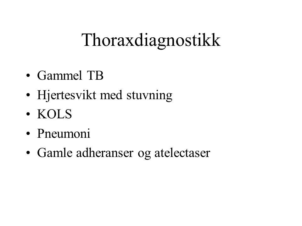 Thoraxdiagnostikk Gammel TB Hjertesvikt med stuvning KOLS Pneumoni Gamle adheranser og atelectaser