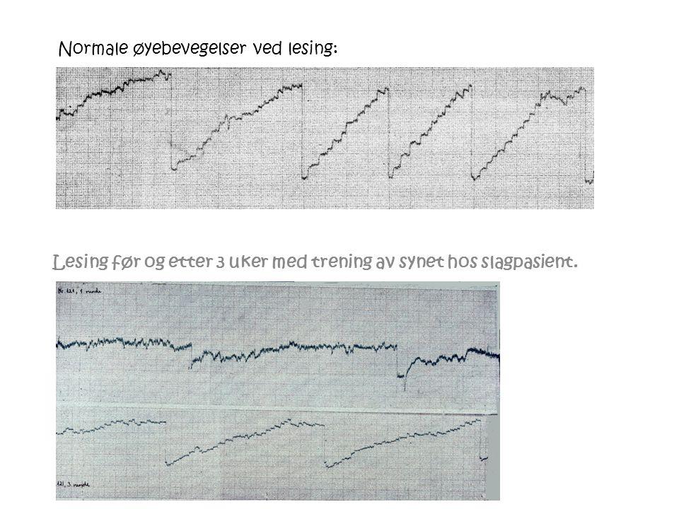 Normale øyebevegelser ved lesing: Lesing før og etter 3 uker med trening av synet hos slagpasient.