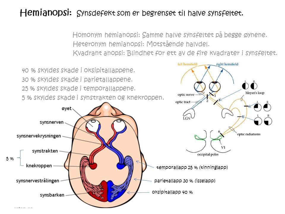 Hemianopsi: Synsdefekt som er begrenset til halve synsfeltet.