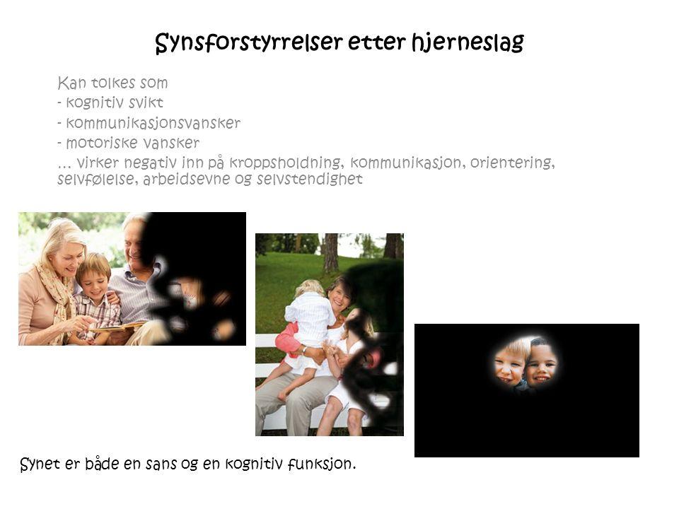 Synstest: Amsler Grid Synstest: Perimetri Statisk: Lysfølsomhet undersøkes med lysglimt av varierende intensitet i tilsynelatende tilfeldige punkter i synsfeltet.