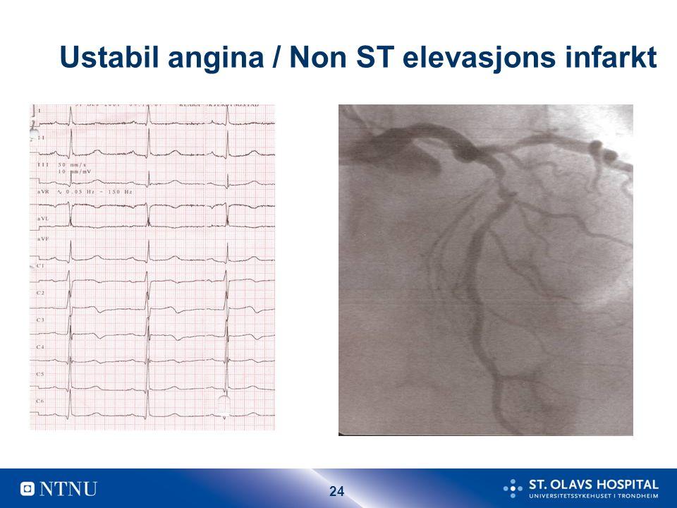 24 Ustabil angina / Non ST elevasjons infarkt