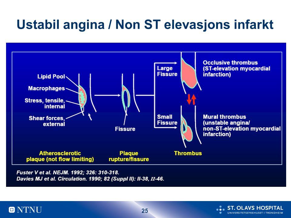 25 Ustabil angina / Non ST elevasjons infarkt