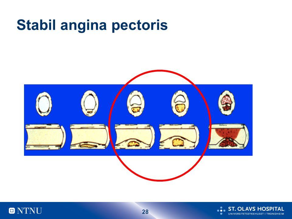 28 Stabil angina pectoris