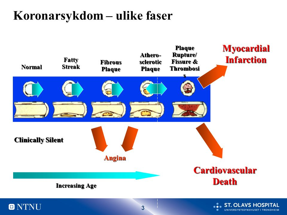 3 Normal Fatty Streak Fibrous Plaque Athero- sclerotic Plaque Plaque Rupture/ Fissure & Thrombosi s MyocardialInfarction Clinically Silent Cardiovascular Death Increasing Age Angina Koronarsykdom – ulike faser