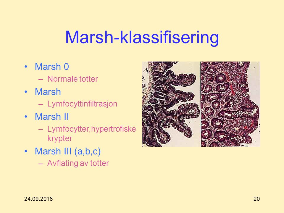 24.09.201620 Marsh-klassifisering Marsh 0 –Normale totter Marsh –Lymfocyttinfiltrasjon Marsh II –Lymfocytter,hypertrofiske krypter Marsh III (a,b,c) –Avflating av totter