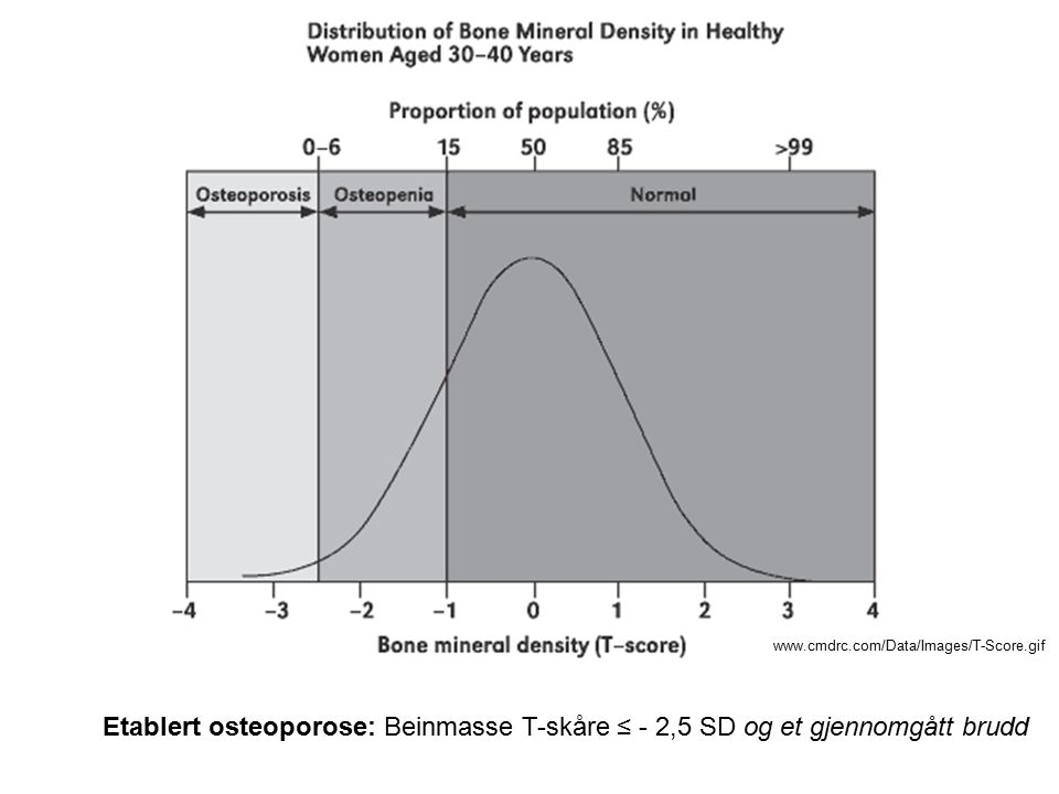 www.cmdrc.com/Data/Images/T-Score.gif Etablert osteoporose: Beinmasse T-skåre ≤ - 2,5 SD og et gjennomgått brudd