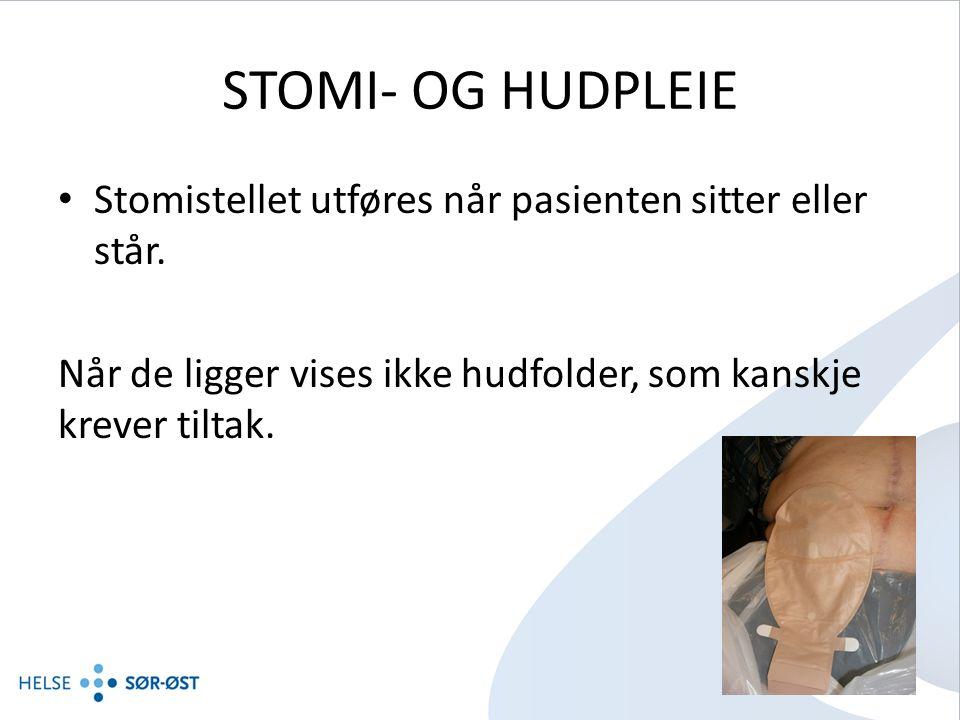 STOMI- OG HUDPLEIE Stomistellet utføres når pasienten sitter eller står.