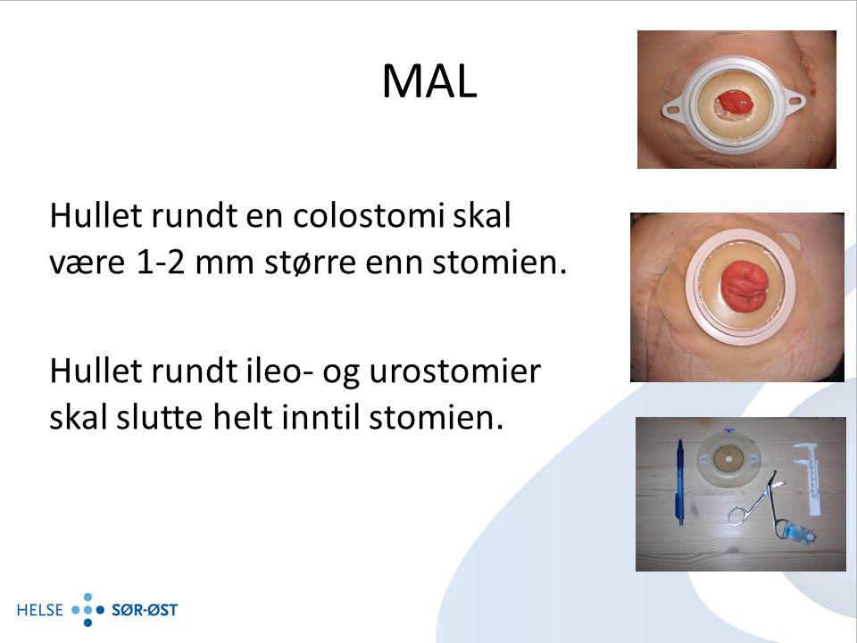 MAL Hullet rundt en colostomi skal være 1-2 mm større enn stomien.