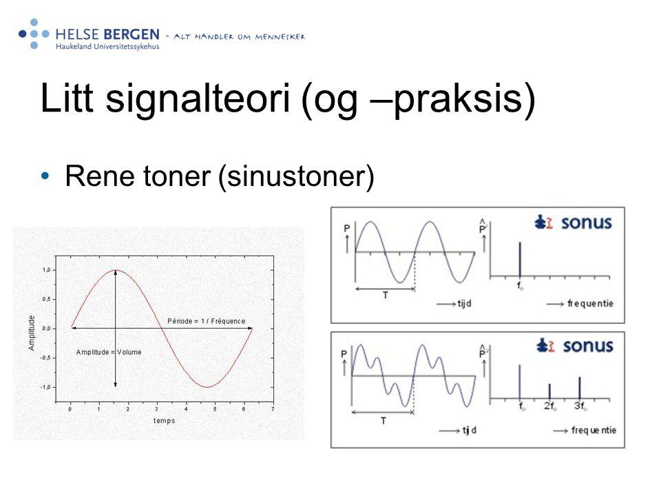 Detaljert utredning I nytt utstyr på Høresentralen er det nå mulighet for en detaljert utredning av frekvens og nivå.