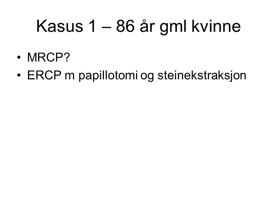 Kasus 1 – 86 år gml kvinne MRCP ERCP m papillotomi og steinekstraksjon