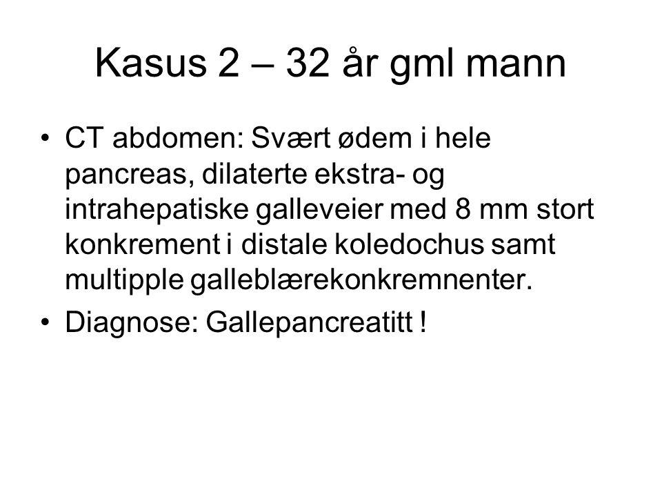 Kasus 2 – 32 år gml mann CT abdomen: Svært ødem i hele pancreas, dilaterte ekstra- og intrahepatiske galleveier med 8 mm stort konkrement i distale koledochus samt multipple galleblærekonkremnenter.