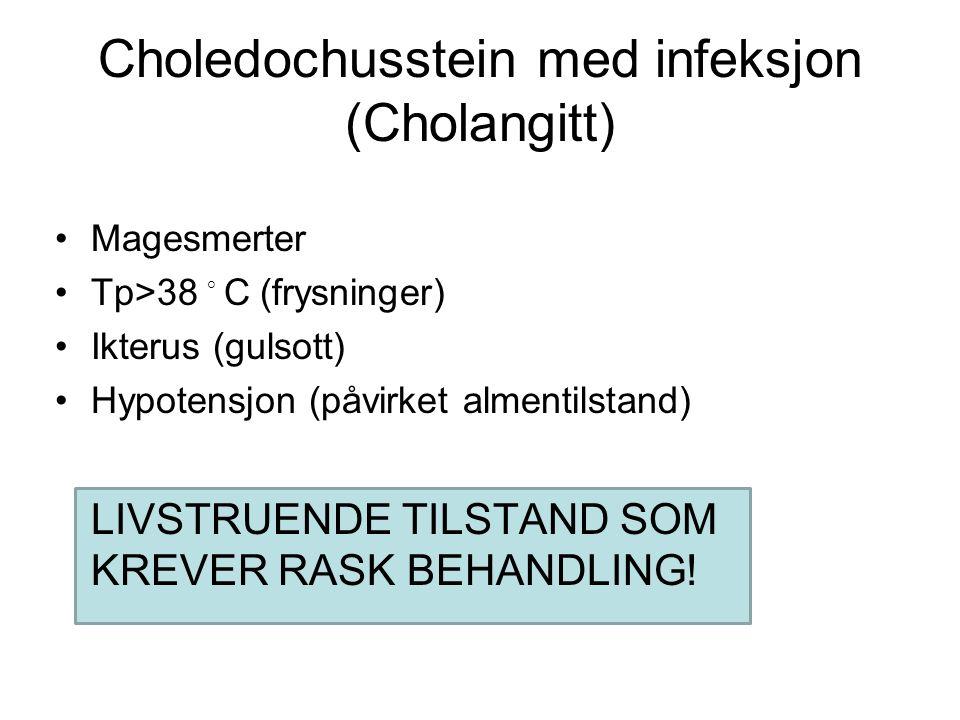 Choledochusstein med infeksjon (Cholangitt) Magesmerter Tp>38 ◦ C (frysninger) Ikterus (gulsott) Hypotensjon (påvirket almentilstand) LIVSTRUENDE TILSTAND SOM KREVER RASK BEHANDLING!