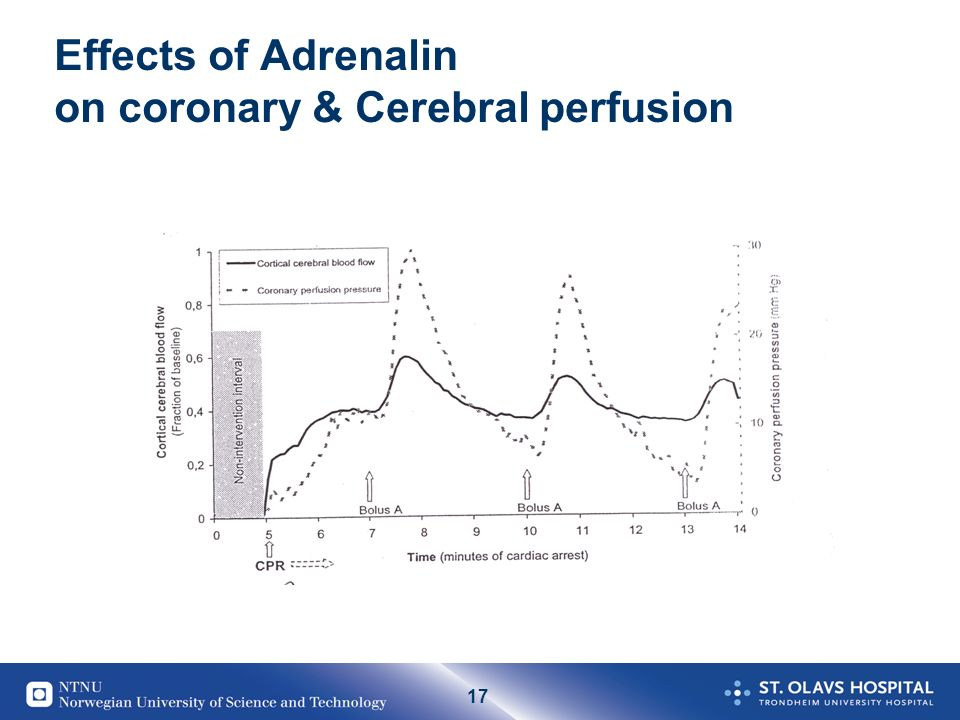 17 Effects of Adrenalin on coronary & Cerebral perfusion