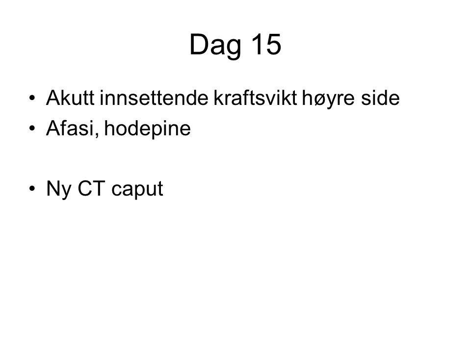 Dag 15 Akutt innsettende kraftsvikt høyre side Afasi, hodepine Ny CT caput