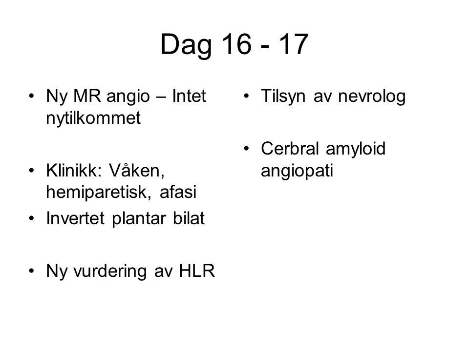 Dag 16 - 17 Ny MR angio – Intet nytilkommet Klinikk: Våken, hemiparetisk, afasi Invertet plantar bilat Ny vurdering av HLR Tilsyn av nevrolog Cerbral amyloid angiopati