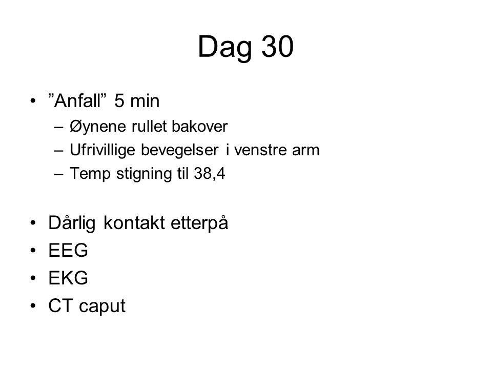 """Dag 30 """"Anfall"""" 5 min –Øynene rullet bakover –Ufrivillige bevegelser i venstre arm –Temp stigning til 38,4 Dårlig kontakt etterpå EEG EKG CT caput"""