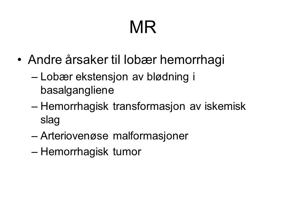 MR Andre årsaker til lobær hemorrhagi –Lobær ekstensjon av blødning i basalgangliene –Hemorrhagisk transformasjon av iskemisk slag –Arteriovenøse malformasjoner –Hemorrhagisk tumor