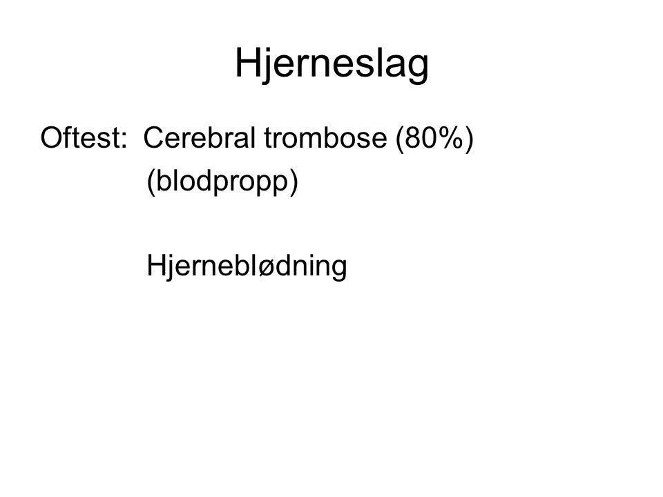 Hjerneslag Oftest: Cerebral trombose (80%) (blodpropp) Hjerneblødning