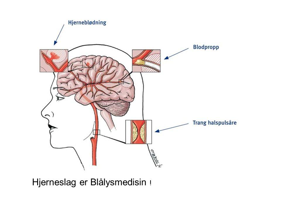 Hjerneslag er Blålysmedisin !