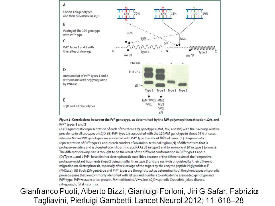 Gianfranco Puoti, Alberto Bizzi, Gianluigi Forloni, Jiri G Safar, Fabrizio Tagliavini, Pierluigi Gambetti. Lancet Neurol 2012; 11: 618–28 18