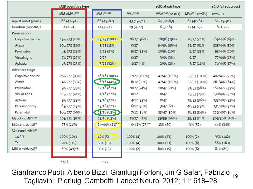Gianfranco Puoti, Alberto Bizzi, Gianluigi Forloni, Jiri G Safar, Fabrizio Tagliavini, Pierluigi Gambetti. Lancet Neurol 2012; 11: 618–28 19