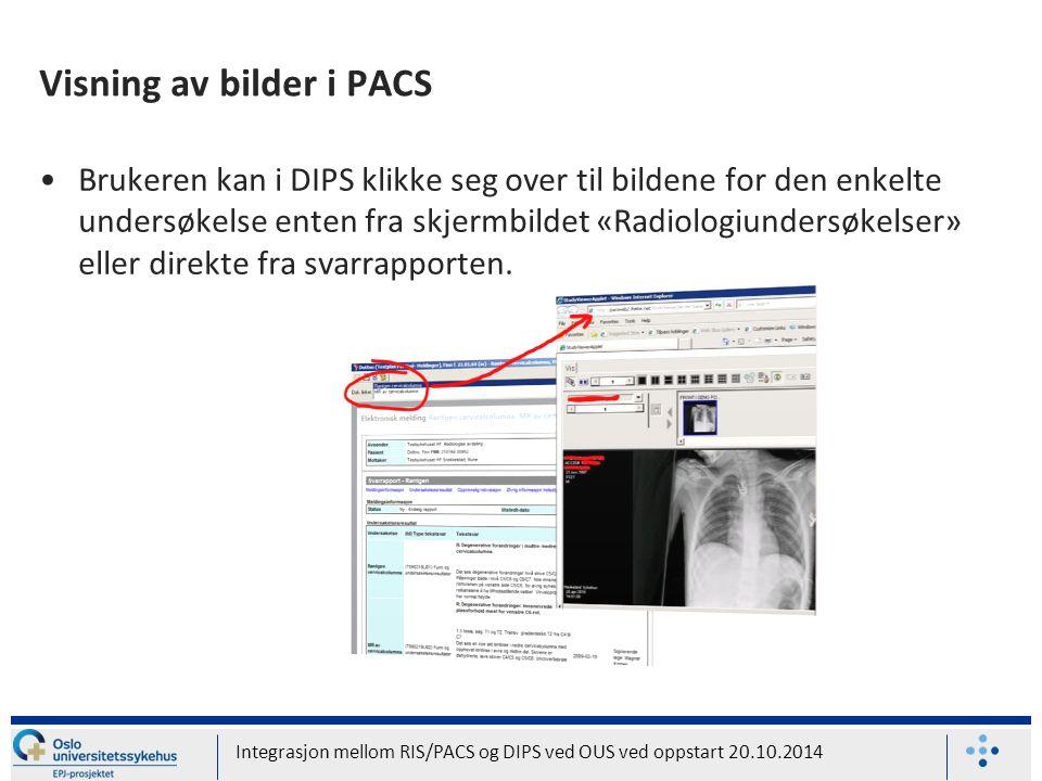 Visning av bilder i PACS Brukeren kan i DIPS klikke seg over til bildene for den enkelte undersøkelse enten fra skjermbildet «Radiologiundersøkelser» eller direkte fra svarrapporten.