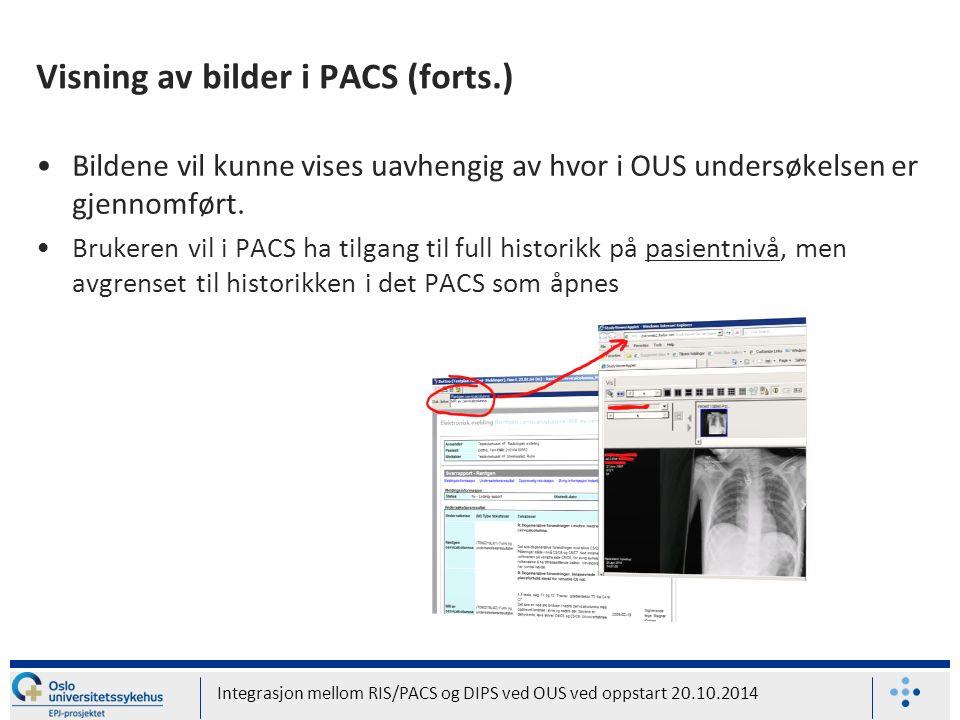 Visning av bilder i PACS (forts.) Bildene vil kunne vises uavhengig av hvor i OUS undersøkelsen er gjennomført.