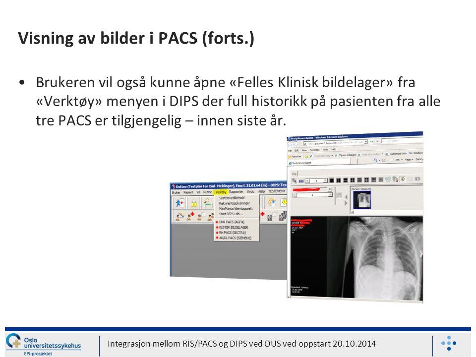Visning av bilder i PACS (forts.) Brukeren vil også kunne åpne «Felles Klinisk bildelager» fra «Verktøy» menyen i DIPS der full historikk på pasienten fra alle tre PACS er tilgjengelig – innen siste år.