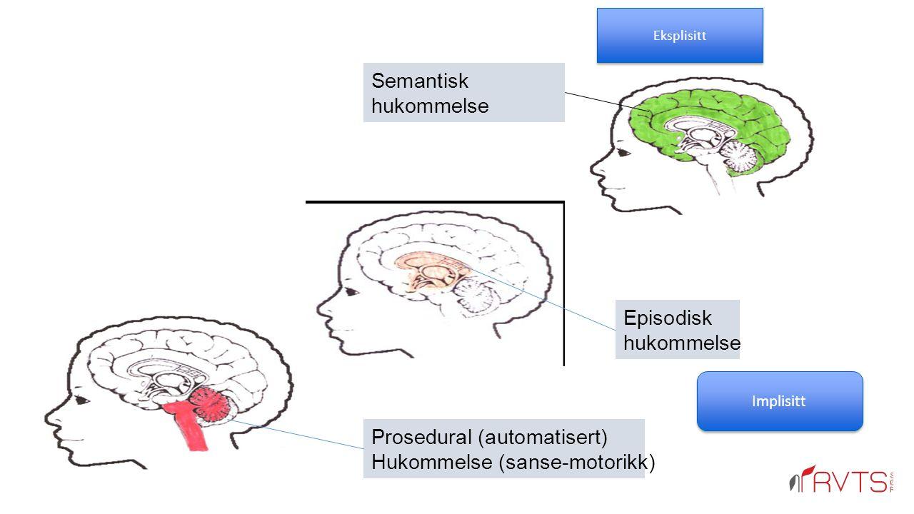 Prosedural (automatisert) Hukommelse (sanse-motorikk) Episodisk hukommelse Semantisk hukommelse Eksplisitt Implisitt
