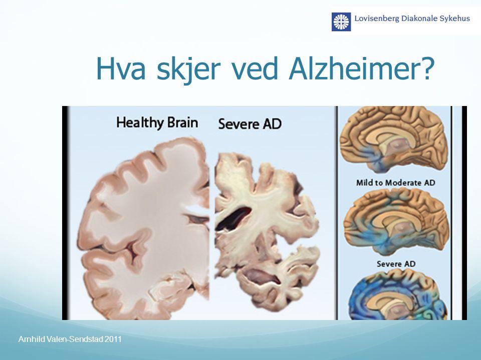 Hva skjer ved Alzheimer? Arnhild Valen-Sendstad 2011
