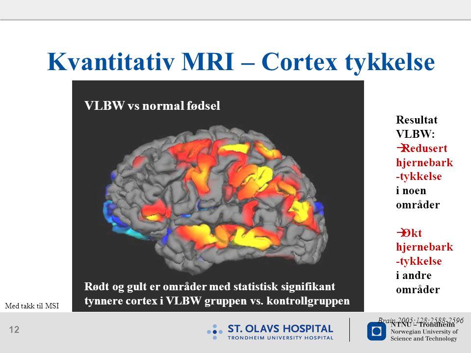 12 Kvantitativ MRI – Cortex tykkelse VLBW vs normal fødsel Rødt og gult er områder med statistisk signifikant tynnere cortex i VLBW gruppen vs.