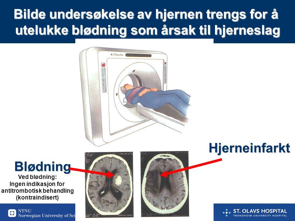 34 Antitrombotisk behandling ved akutt hjerneinfarkt Trombolyse innen 4,5 timer (grad A - sterk anbefaling) (Vurdere mekanisk fjerning ved store blodpropper uten effekt av trombolyse) ASA til alle andre akutte hjerneinfarkter (grad A) Vente med ASA til etter 24 timer ved trombolyse Antikoagulasjon er vanligvis ikke indisert i akutt fasen.