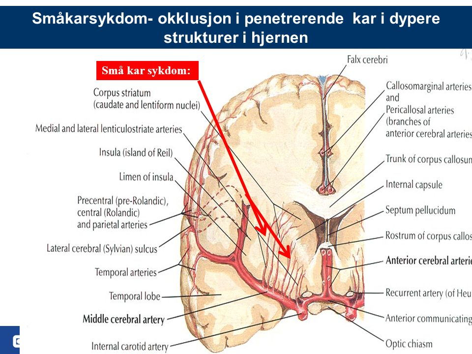 6 Småkarsykdom- okklusjon i penetrerende kar i dypere strukturer i hjernen Små kar sykdom:
