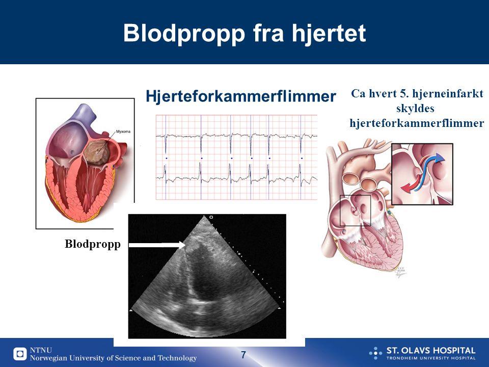 58 Cardial emboli emboli20-30% StorkarSykdom40-60% SmåkarSykdom20-30% Mange ulike vaskulære utgangspunkt for ischemisk slag PH AC: AF;Ventil,Akutt MI (NOAC kun ved AF) PH PH PH: Platehem AC : Antikoag Oppsummering: Sekundær profylakse – et kompliert bilde Andre cardiale embolier: Minor embolikilde;Som oftest PH